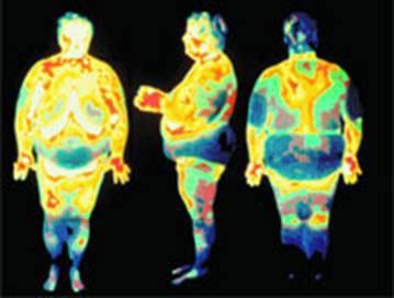 obesite1.jpg